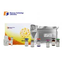 Cheap Beta - Hydroxybutyric Acid Bovine ELISA Kit 96 Wells High Specificity For Research wholesale